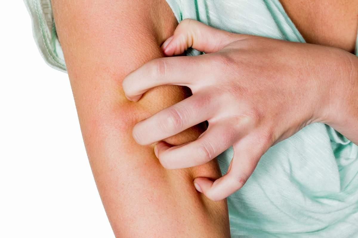 Аллергия на коже – что делать, симптомы, как лечить