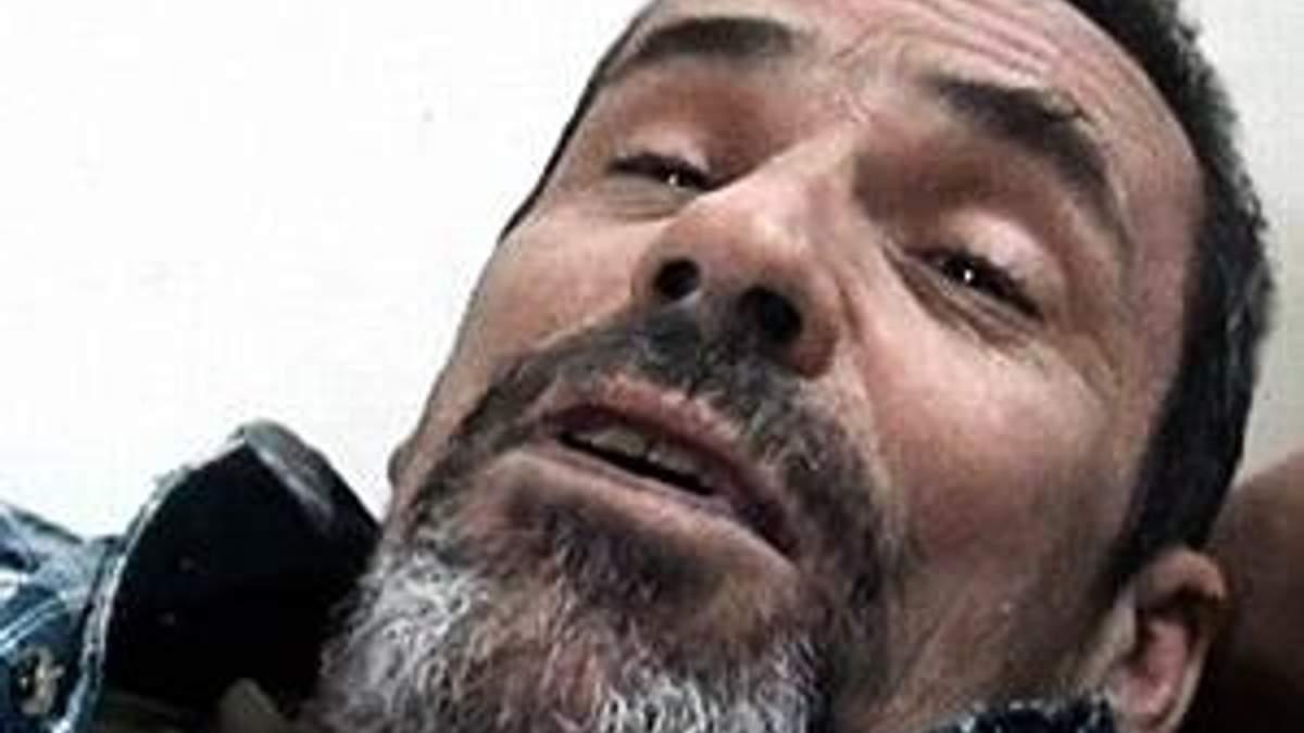 Сирія: Повстанці евакуювали пораненого фотокореспондента