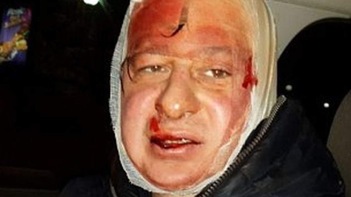 "8 ""беркутовцев"" избили фотожурналиста Лиги (Фото)"