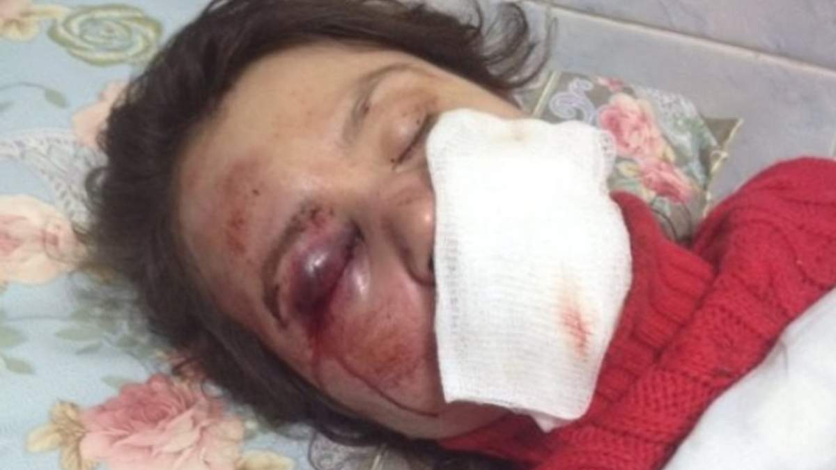 Тетяну Чорновол побили