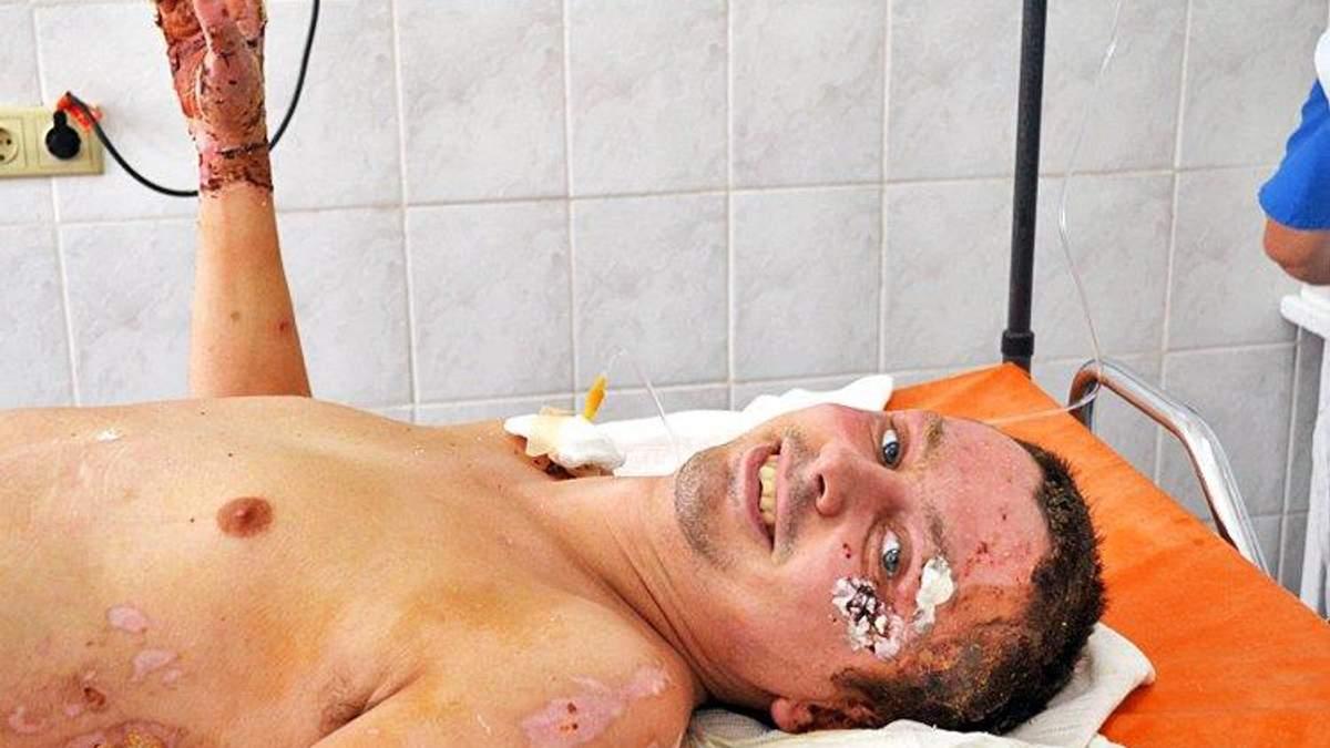 Пацієнт Назар під час відновлення