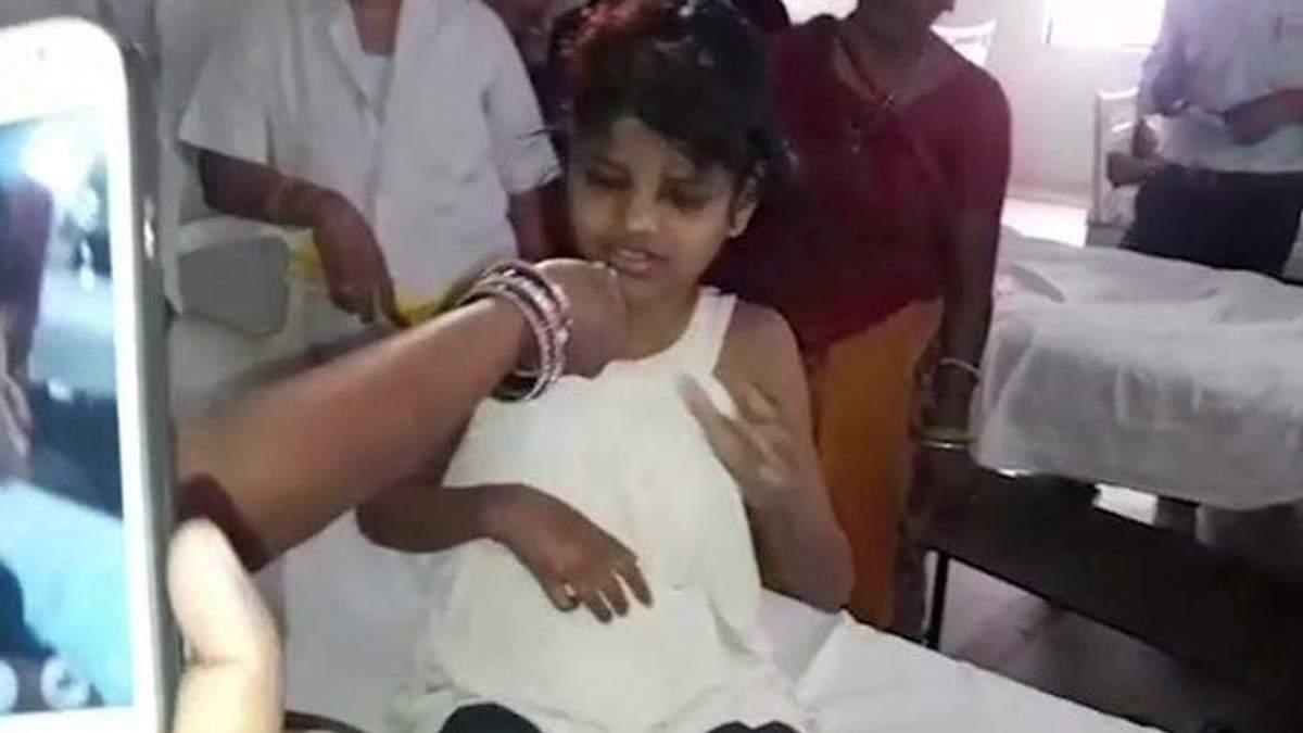 Дівчинка-мауглі з Індії
