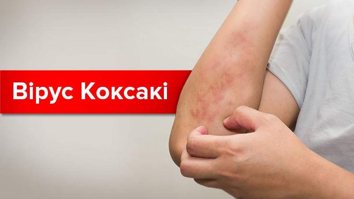 Небезпечний вірус Коксакі: симптоми та шляхи зараження