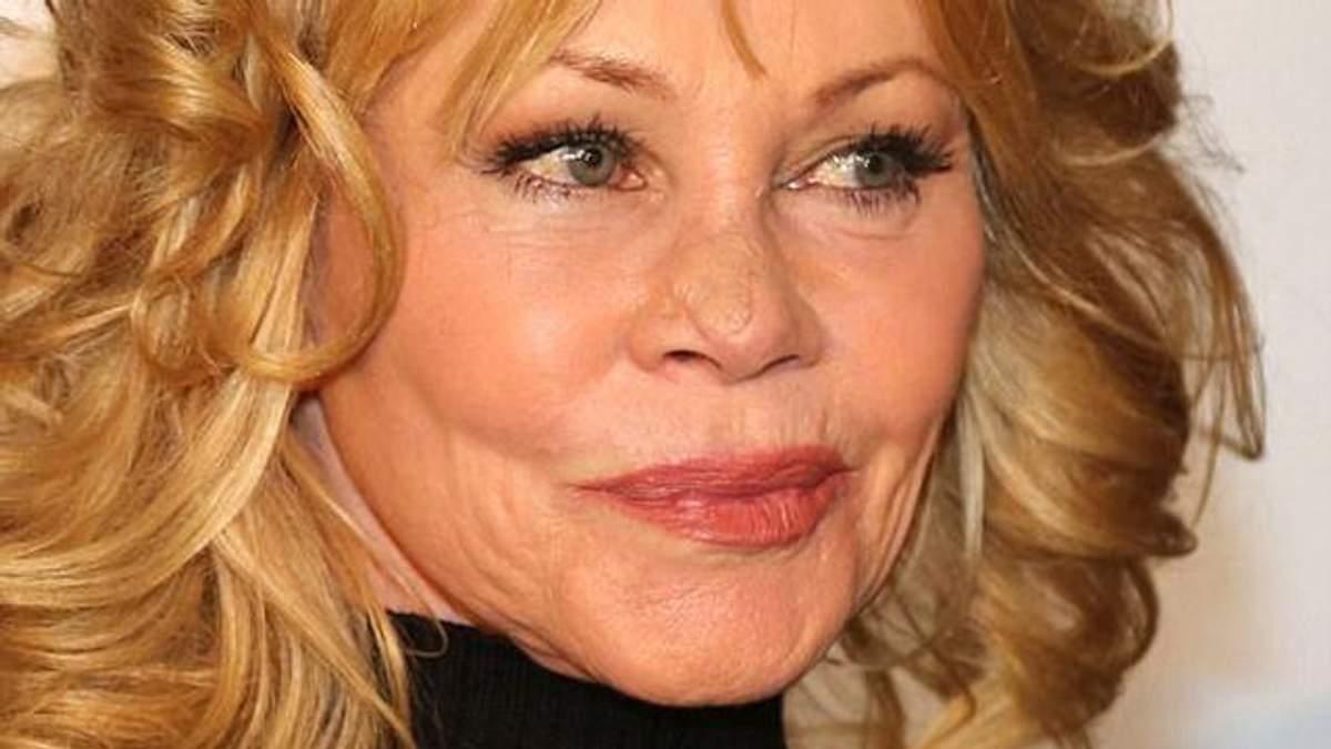 Мелані Гріффіт показала обличчя після операції