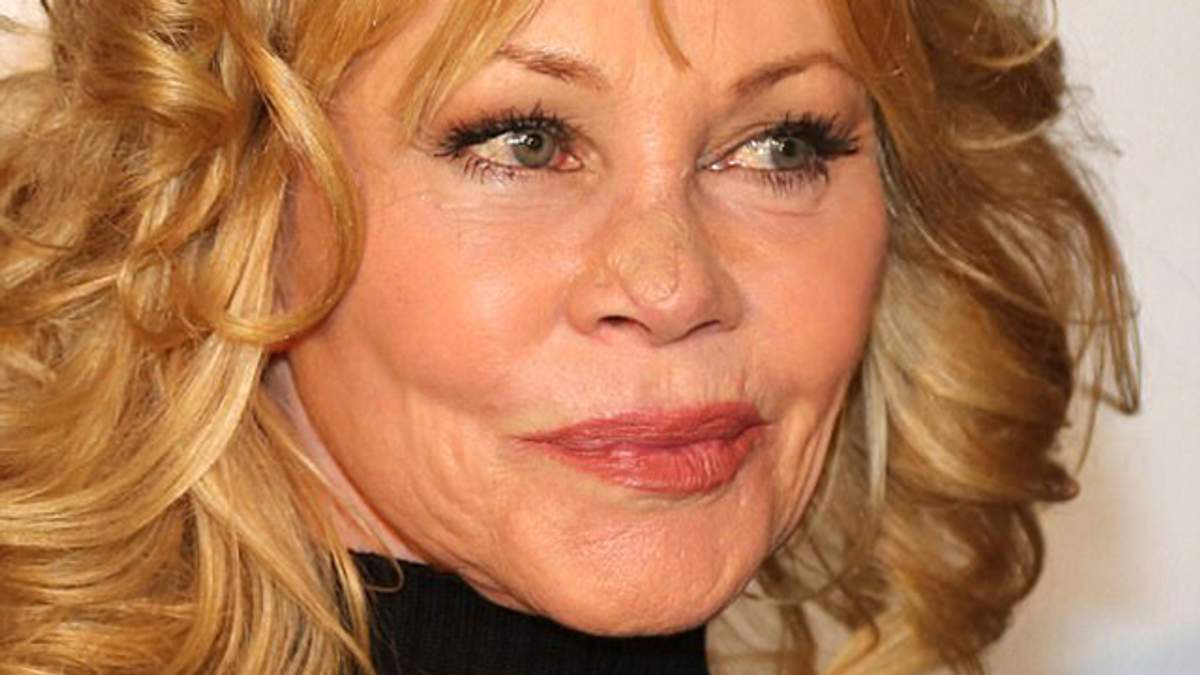 Мелани Гриффит показала лицо после операции