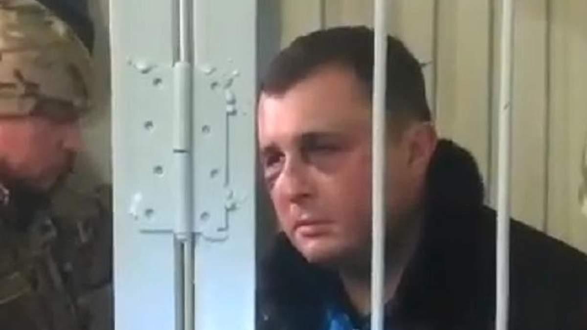 У СБУ прокоментували синці на обличчі екс-нардепа Шепелева