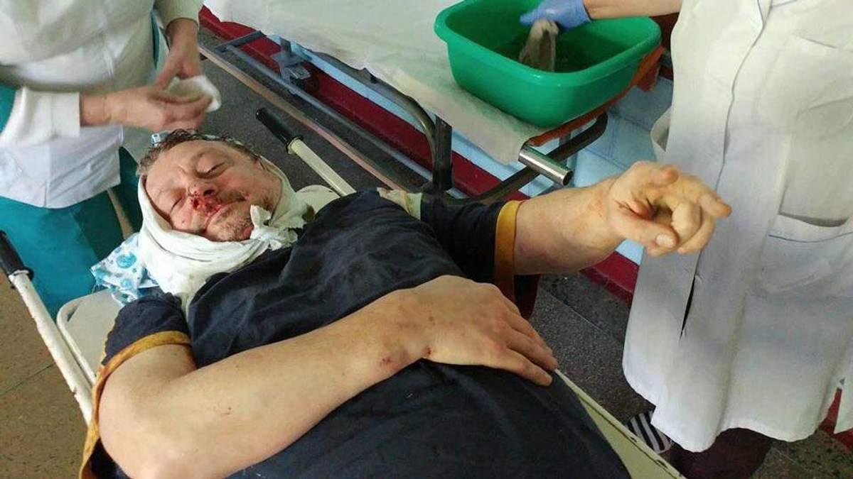 На Полтавщині жорстоко побили соратника Саакашвілі: у чоловіка численні переломи