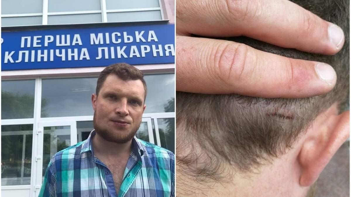 """В полтавском офисе """"Социалистической партии"""" избили журналиста Ярослава Журавля"""