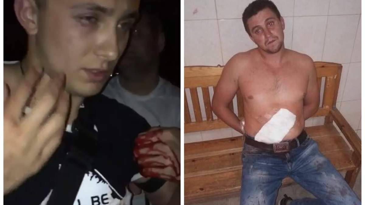 Покушение на Стерненко: нападавшего освободили из-под ареста