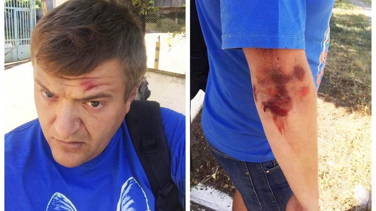 Напад на журналіста в Херсоні: чоловік розповів подробиці про своїх кривдників і показав фото