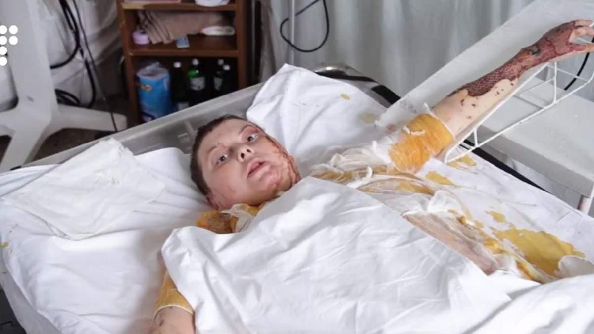 Який вигляд має Катерина Гандзюк, яку облили кислотою: активістка записала відеозвернення