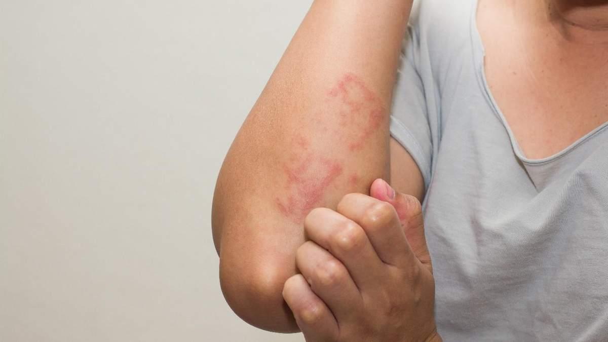 Алергія на їжу