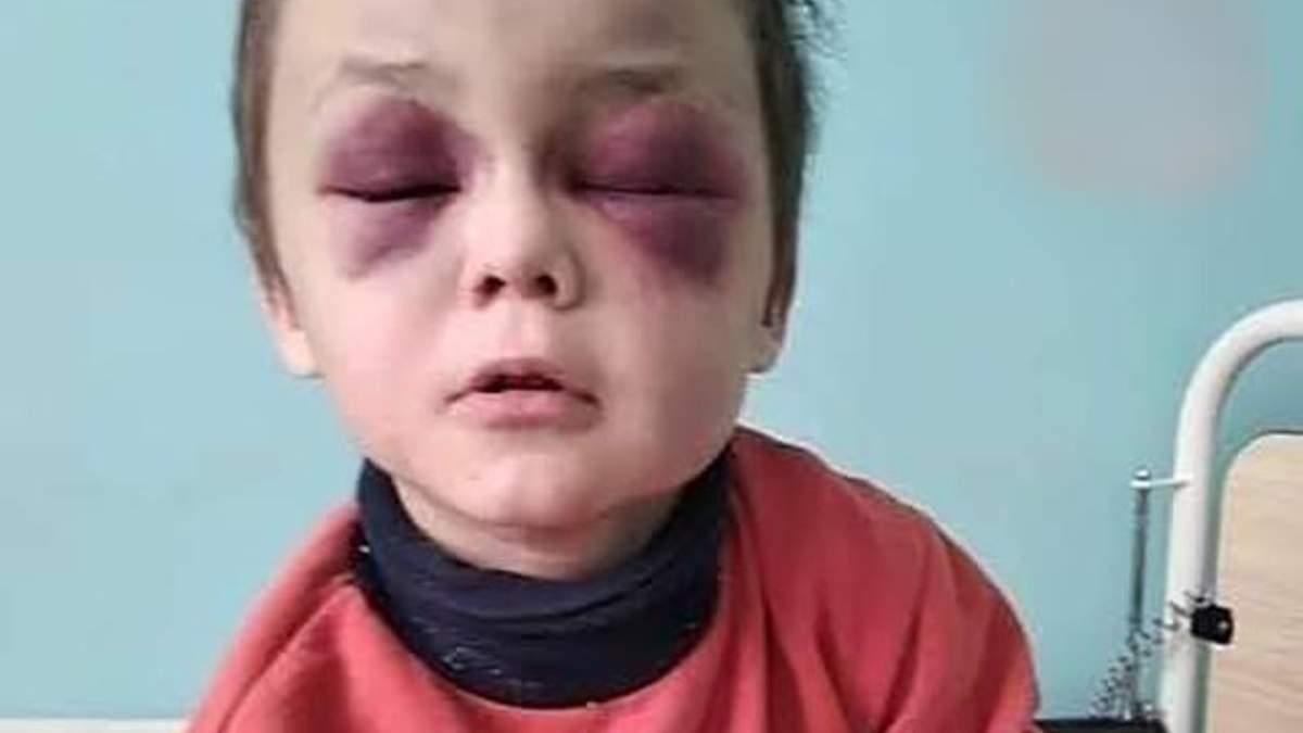 Вместо глаз – большие синяки: на Винниччине родители жестоко избили 6-летнего ребенка. Обновлено