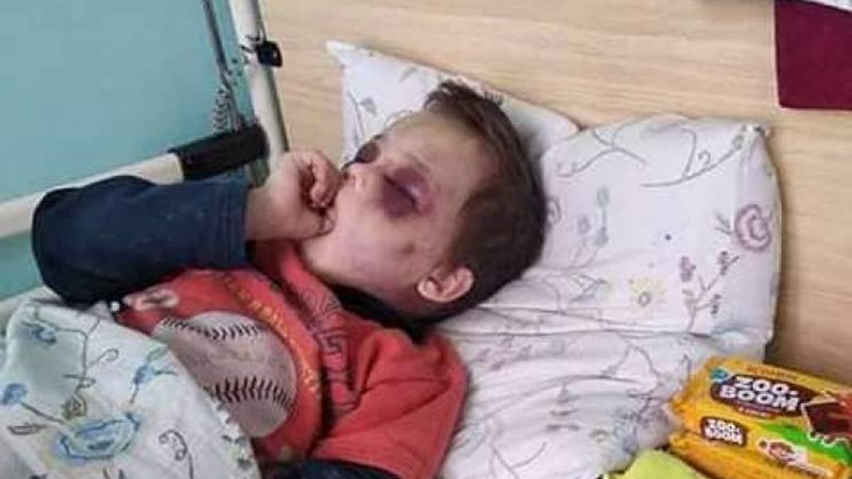Жестокое избиение 6-летнего мальчика на Винничине: как накажут отца