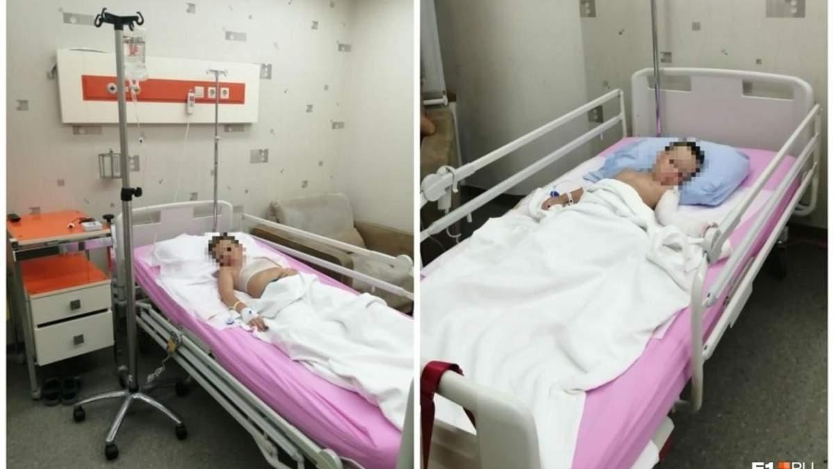 На курорті у Туреччині кухар розлив розпалену олію на дітей з Росії