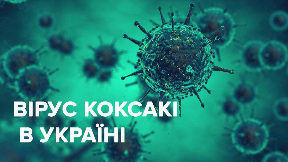 Вірус Коксакі в Україні у 2019: все, що відомо про хворобу