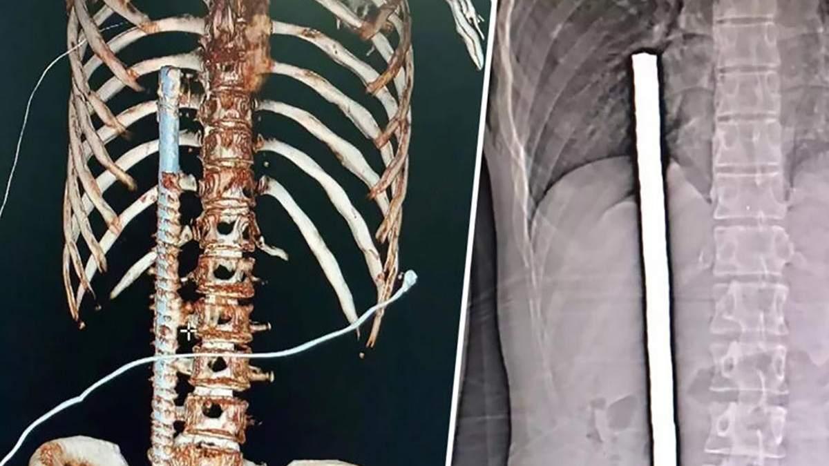 Металлический прут застрял за 3 сантиметра от сердца мужчины