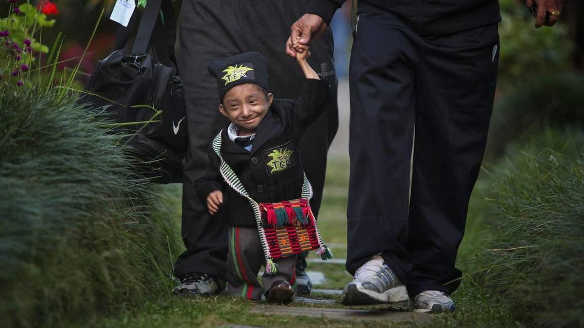 Померла найменша людина у світі: дивіться фото рекордсмена Книги рекордів Гіннеса