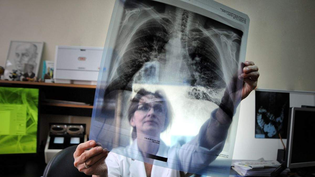 Лікування туберкульозу: що зміниться в  Україні