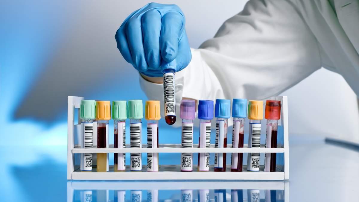 Лікарі зможуть робити тести на коронавірус у пацієнтів вдома