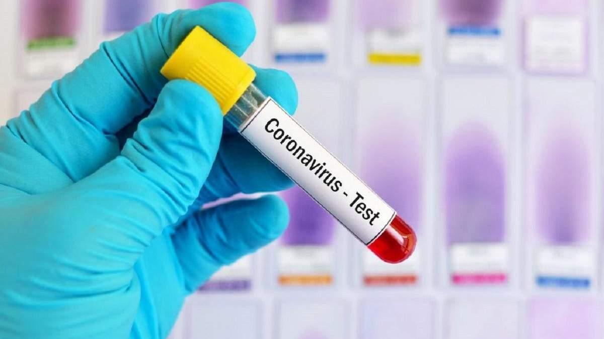 30 марта в Украине подтвердили еще 62 случая заболевания коронавирусом