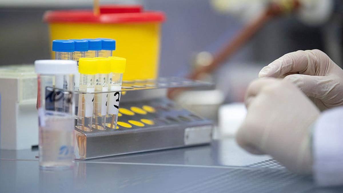 У Львові робитимуть експрес-тести на коронавірус: кого тестуватимуть