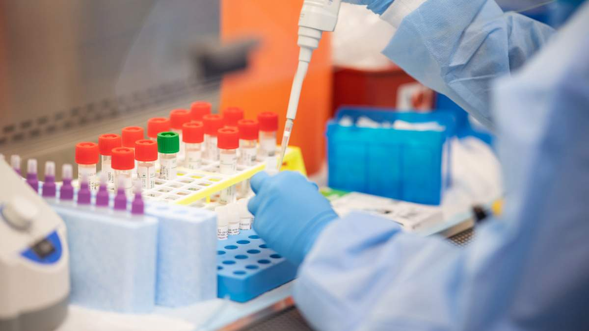 ПЛР-тести на коронавірус
