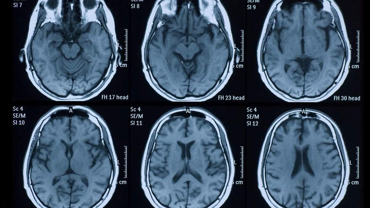 Коронавирус повреждает мозг