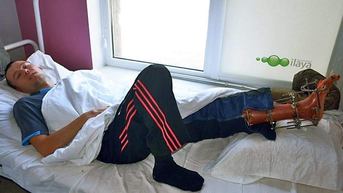 Важке ушкодження ноги бійця Сергія