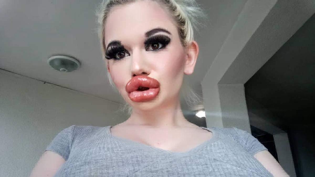 Ін'єкції краси: фото в кого найбільші губи
