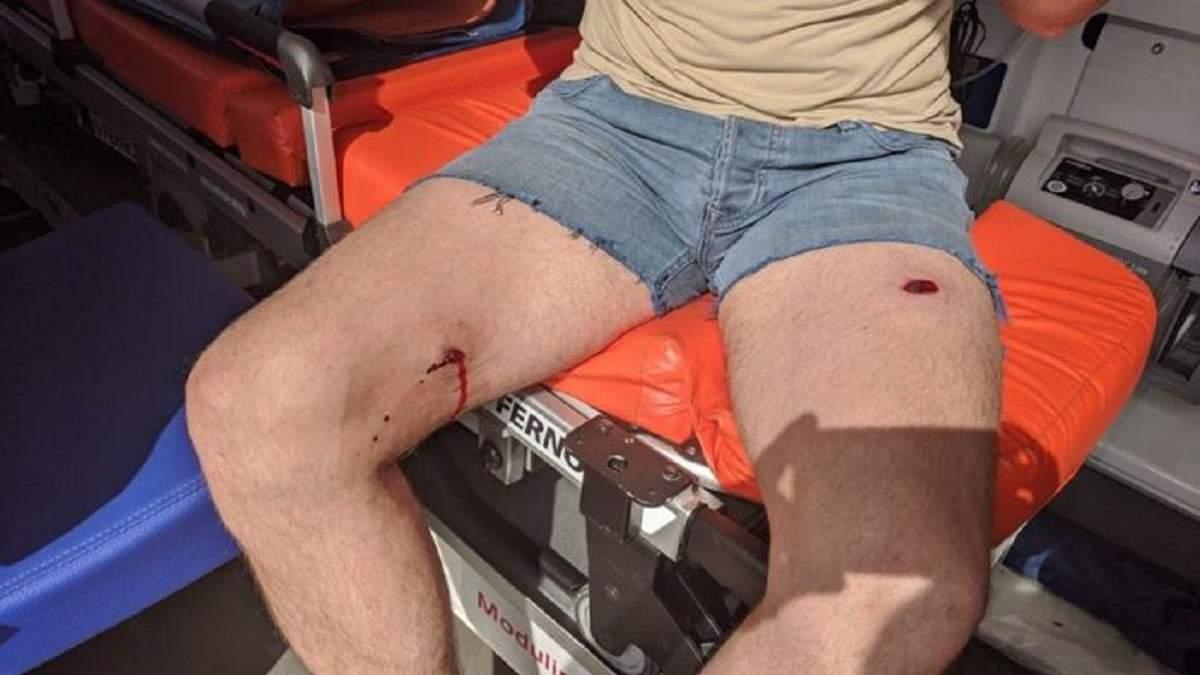 Стрілянина Княжичах: депутату Ігорю Фірсову простелили ногу – відео