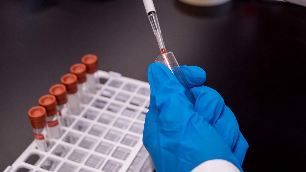 Аутизм: аналіз крові