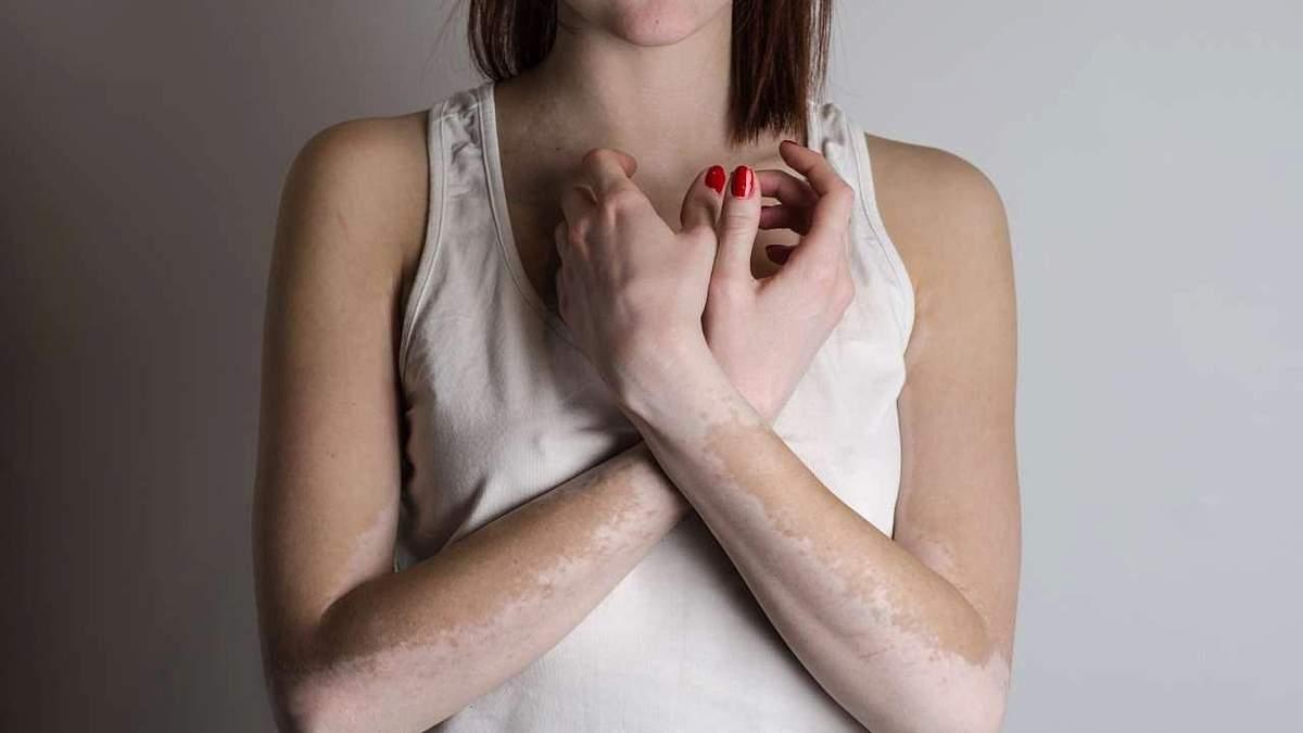 Витилиго – что это, симптомы и как определить витилиго