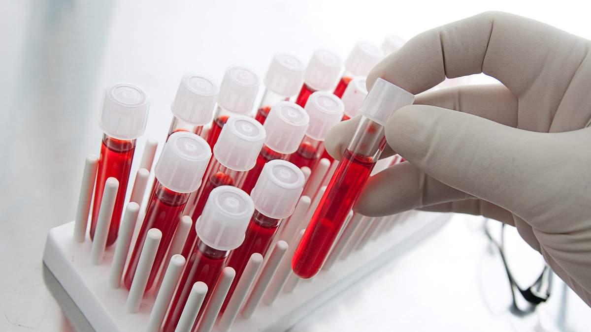 Як коронавірус викликає інсульт