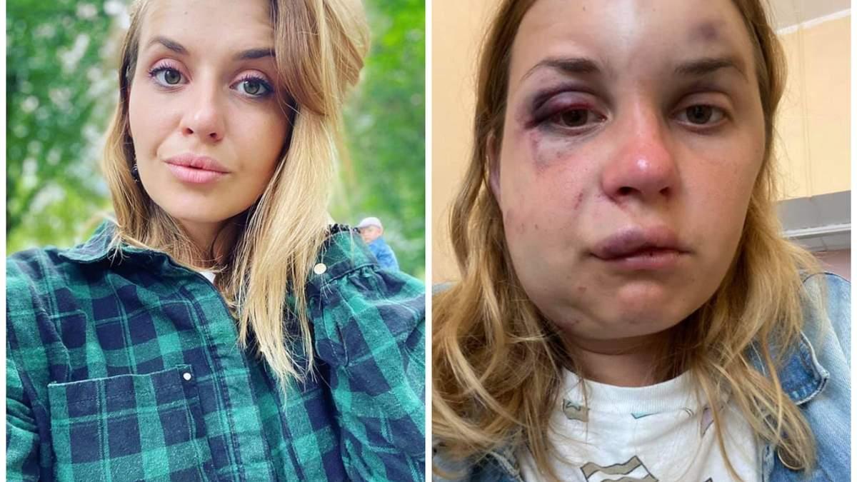 Нападение в поезде Мариуполь – Киев На Анастасию Луговую 1 августа 2020 –