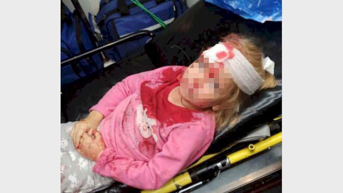 Постраждала дівчинка, яку збив військовий автомобіль у Гродно