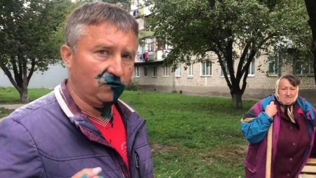 Депутата Оппоблока Тычину в Житомире облили зеленкой: видео