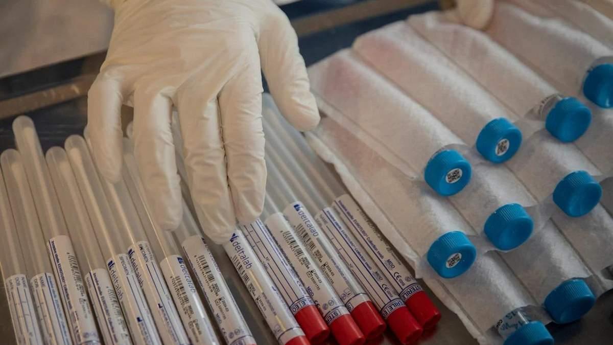 Коронавірус в Україні - коли кількість хворих на COVID виросте - 24tv