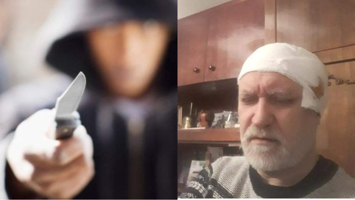У Запоріжжі з ножем напали на двох священників УПЦ МП