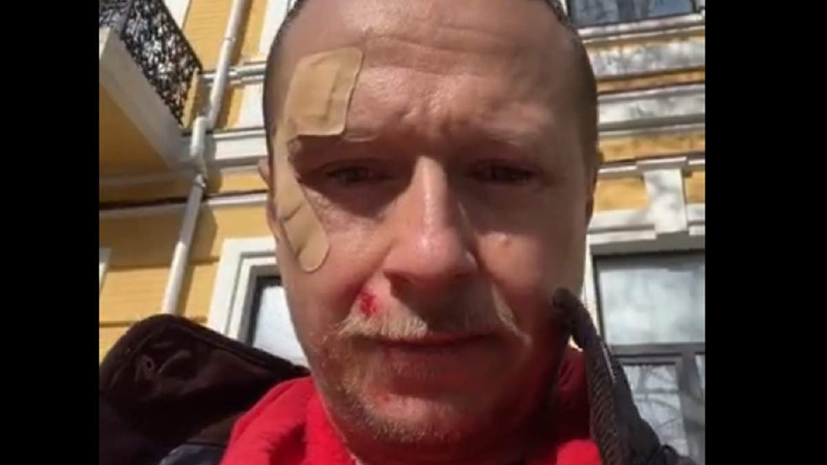 Распылили газ в глаза и ударили: схватка Щура с 2 парнями