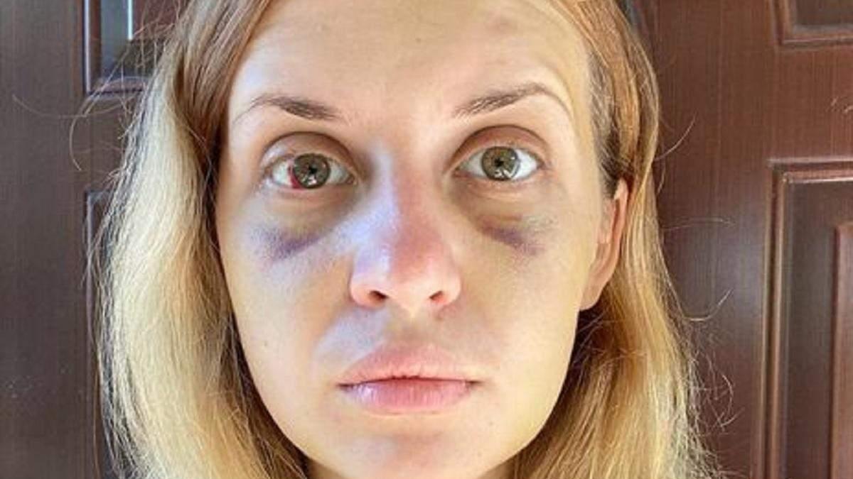 Спроба згвалтування Лугової: суд закрив кримінальне провадження