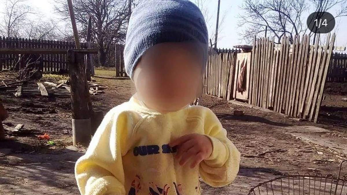 У 2-летнего мальчика, которого порезал отчим в Днепре, отказал мозг