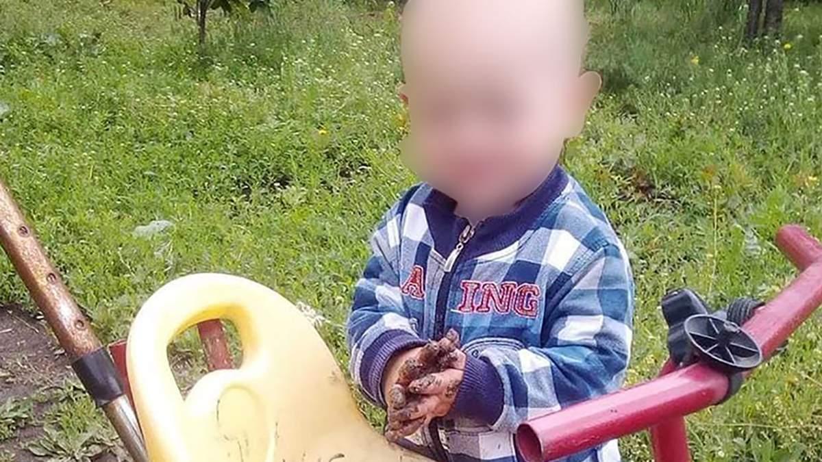 У Дніпрі помер 2-річний хлопчик, якого порізав вітчим