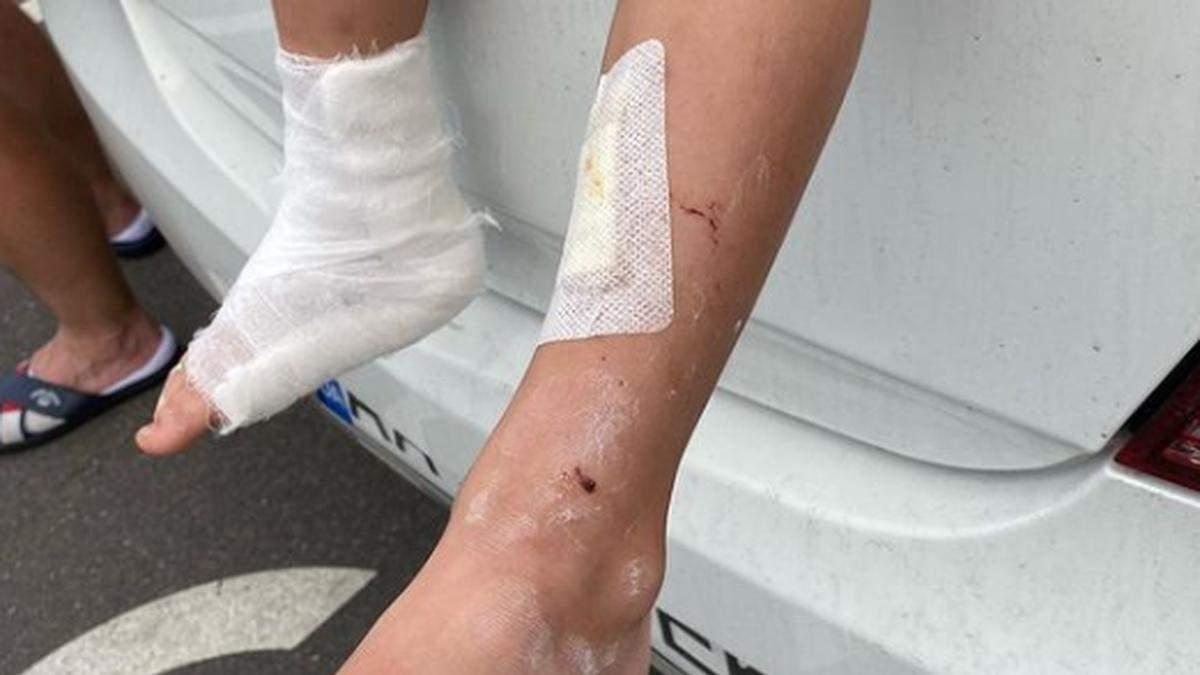У Києві в Papashon хлопчик заліз на вітрину, а вона впала на нього
