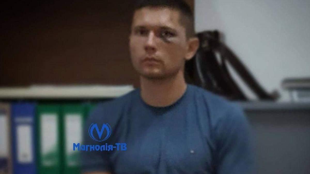 ГБР задержала бойца госохраны, который побил танцора Дорофеевой