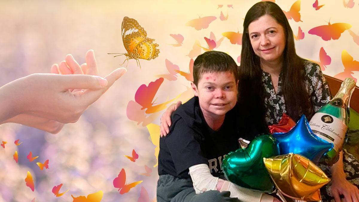 """Невозможно закрыться стеной от больных детей, – интервью с матерью """"мальчика-бабочки"""""""