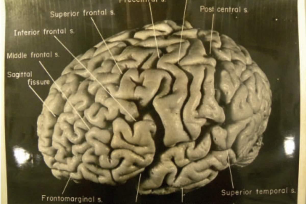 мозок альберта ейнштейна