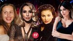 Лорак, Лобода, Повалий: как изменились украинские исполнительницы после серьезной пластической хирургии