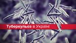 Епідемія туберкульозу в Україні: чому за 20 років проблема не подолана