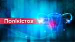 Полікістоз яєчників: симптоми, причини виникнення, діагностика та лікування